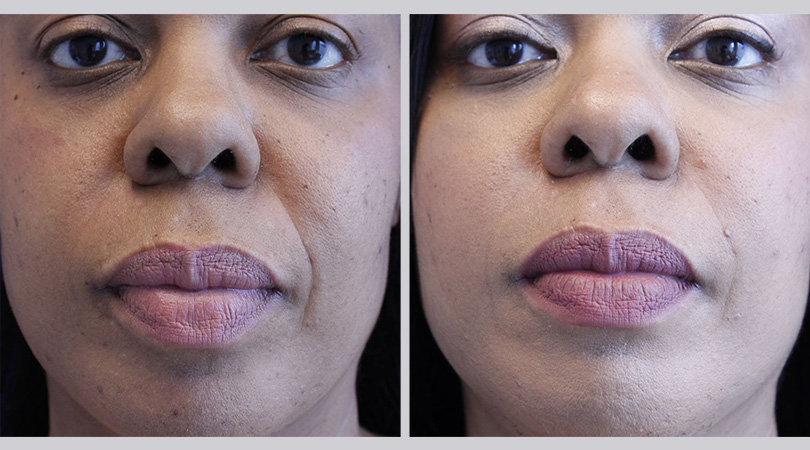 dermal fillers before and after palm beach