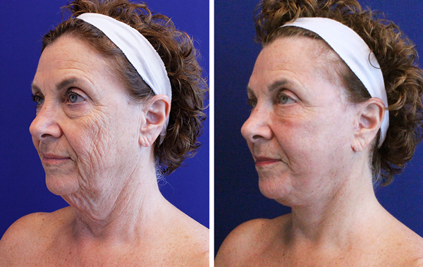 facelift and neck lift before and after palm beach