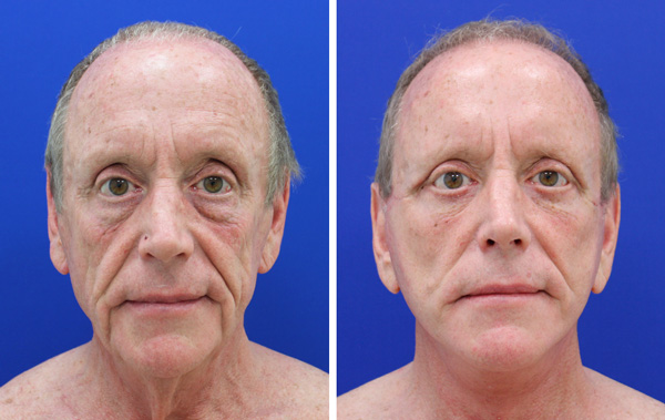male facelift and neck lift before and after palm beach