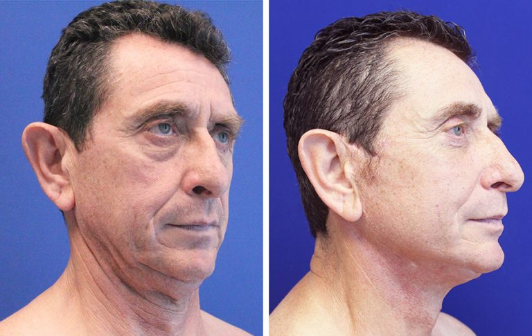 male face lift before and after palm beach