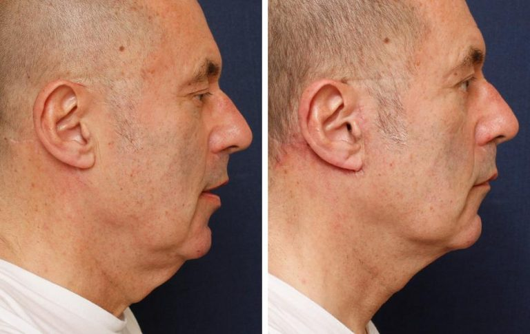 male neck lift before and after palm beach