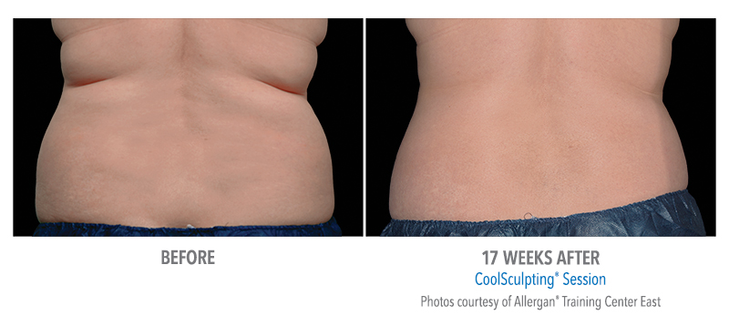 before and after back coolsculpting