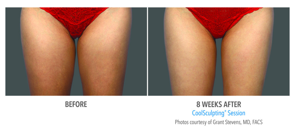 before and 8 weeks after coolsculpting jupiter