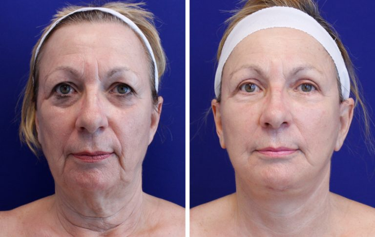 facelift before and after palm beach fl