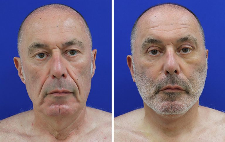 male facelift front facing before and after palm beach